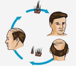 Hajátültetés kopaszodás ellen